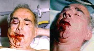 Robert Faurisson, après une attaque menée par une bande de criminels juifs.