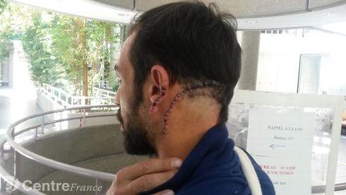 agression-a-la-machette-a-luzillat_2208521