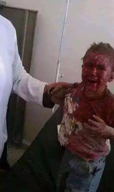 Le martyre de cet enfant yéménite victime des bombardements de vendredi n'intéressera pas les médiats, ne pouvant exploiter cette souffrance contre l'Europe.