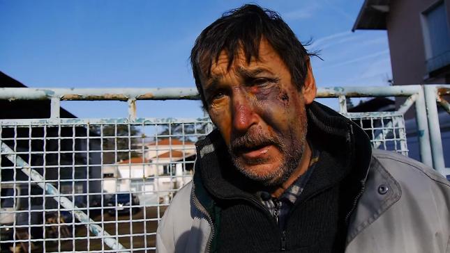 Philippe Layat, après son agression, décembre 2015